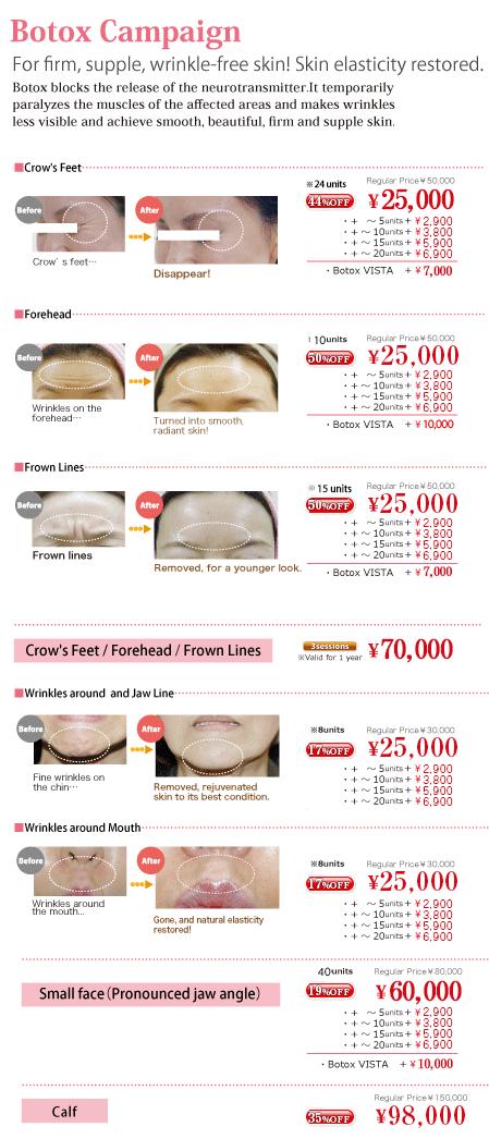 Botox injection / AZABU SKINCLINIC/Tokyo,Japan