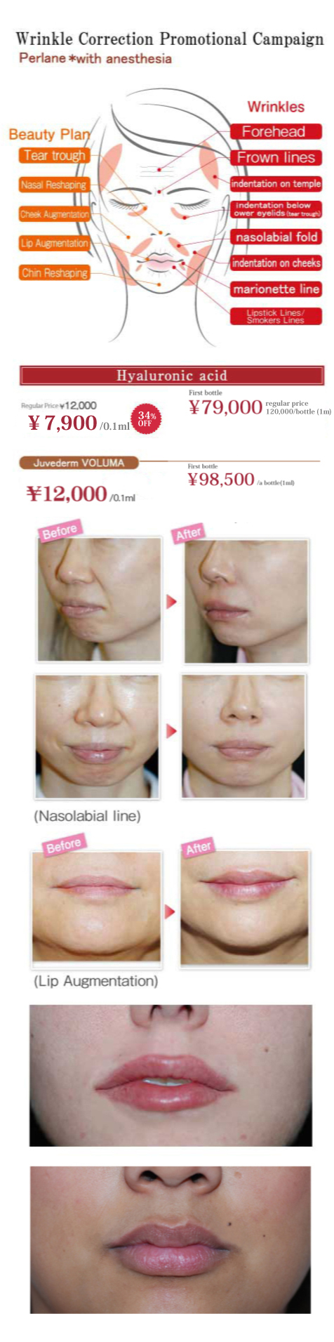 Hyaluronic Acid Muscle Growth